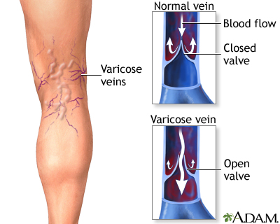 will using a standup desk give you varicose veins